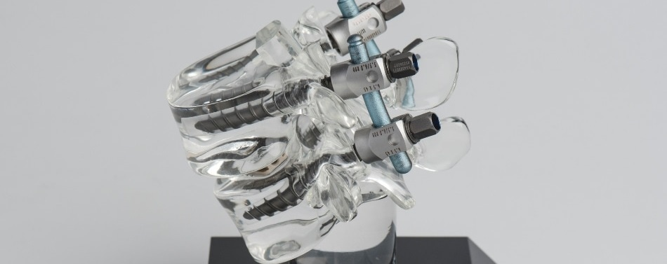 Sensor-Enabled Surgical Robot Offers High Level of Safety for Spinal Operations