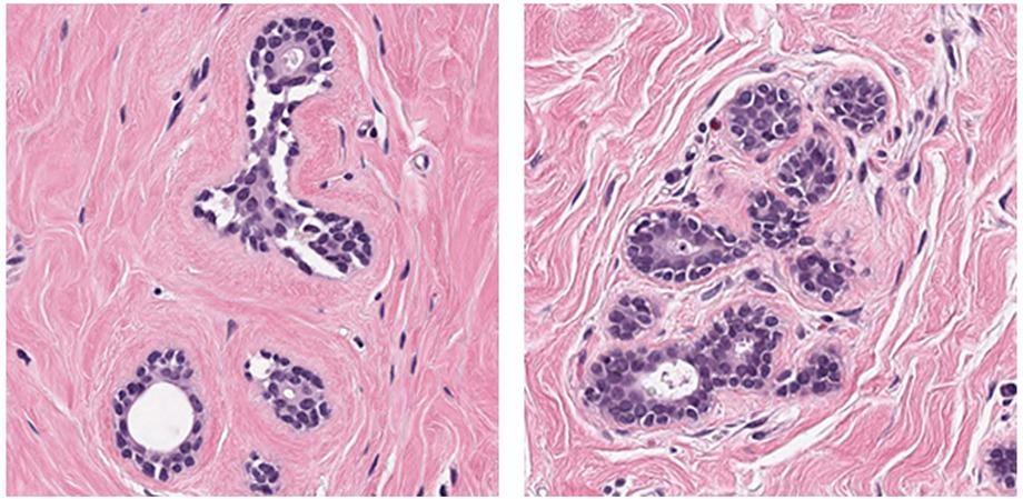 基于新的AI的分析乳腺癌组织显微镜图像的方法