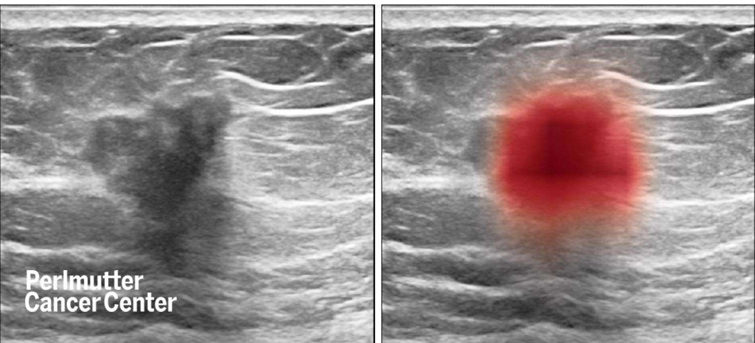 New AI Tool-Based Advancement in Breast Cancer Imaging.