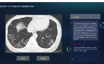 AI-Generated Medical Reports to Offer Accurate, Timely Diagnosis of COVID-19