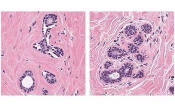 基于人工智能的乳腺癌组织显微图像分析新方法