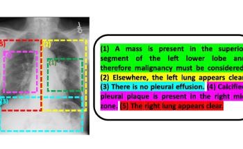 Researchers Improve Interpretive Abilities of AI by Using Radiology Reports